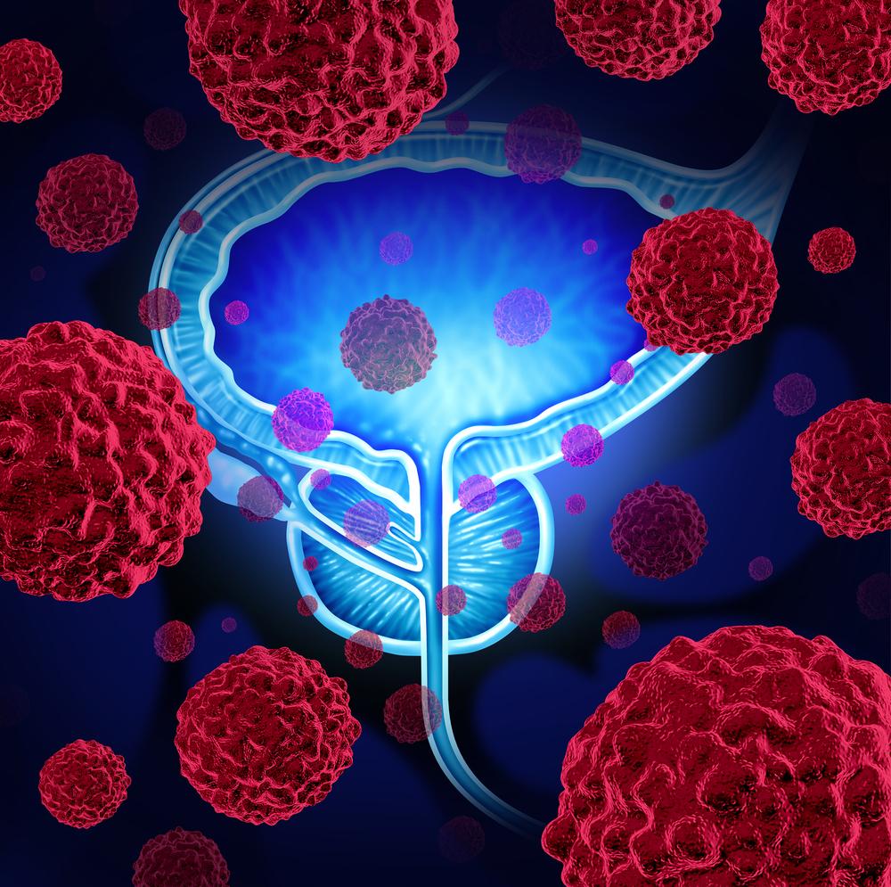 rakovina-prostaty