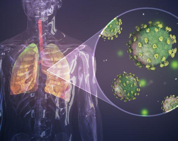 koronavirus-zapal-pluc