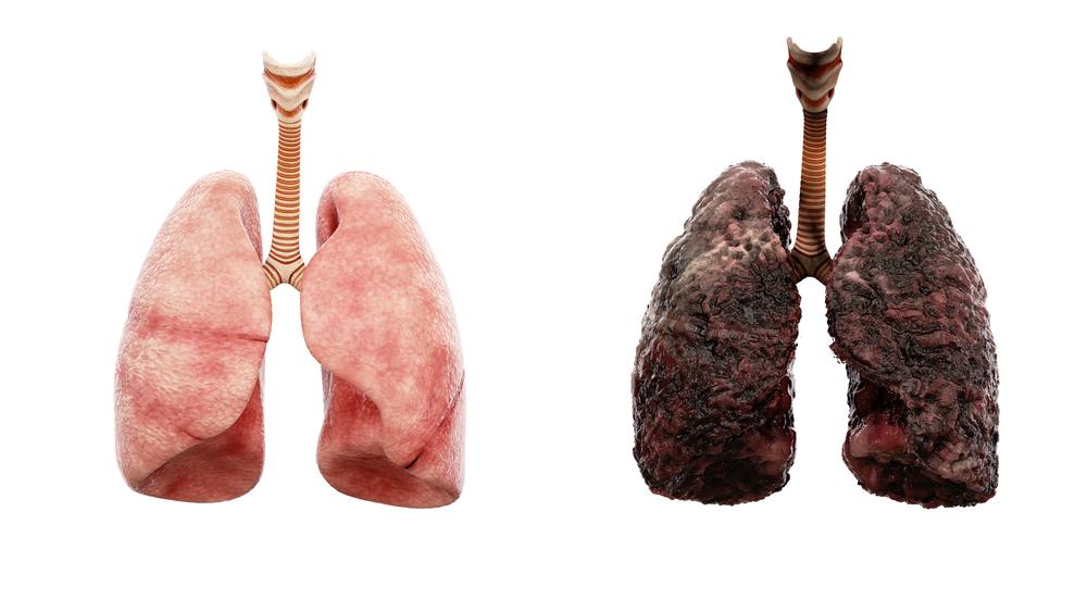 zdrave-pluca-postihnute-pluca-rakovina