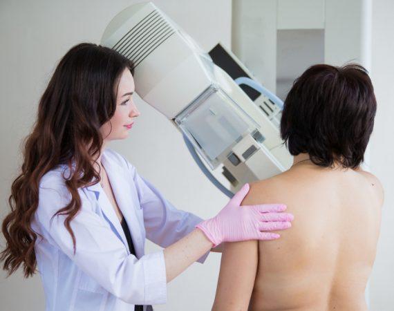 rakovina-prsnika-ilustrak
