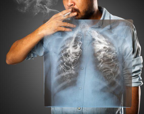 rakovina-pluc